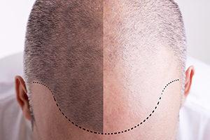 Scalp Micropigmentation Dermocharme Geneve Suisse